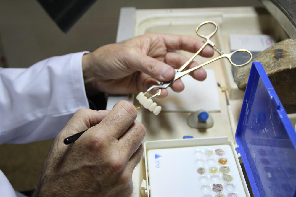 laboratorio-italprodent-protesico-estetica3