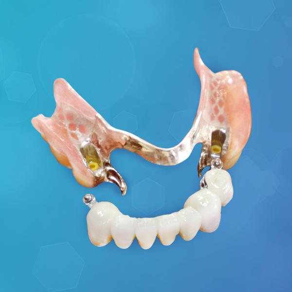 potesis-dental-hibrida-italprodent