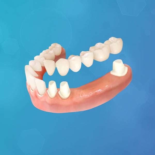 protesis-dental-fija-italprodent