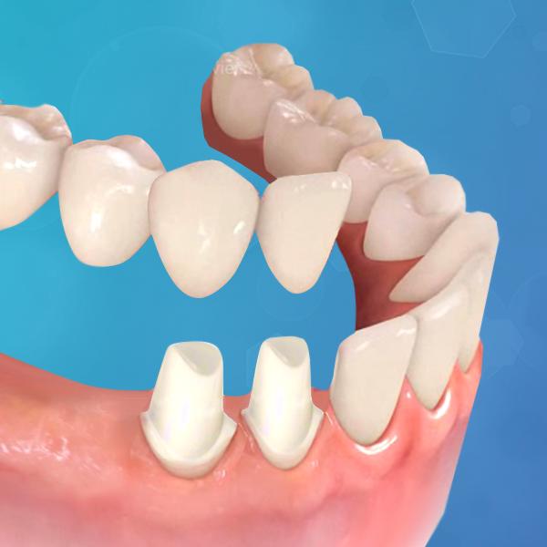 protesis-dental-fija-sobre-diente-natural_italprodent