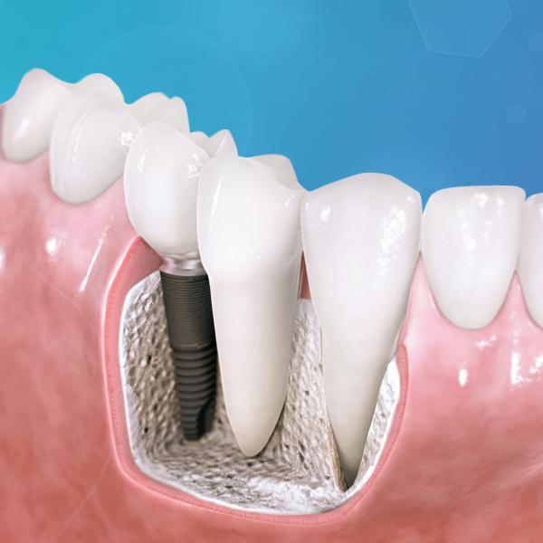 protesis-fija-sobre-implante-italprodent