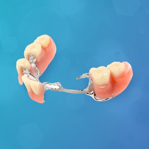 protesis-removible-esqueletica-italprodent