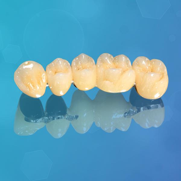 protesis-dental-fija-metal-ceramica