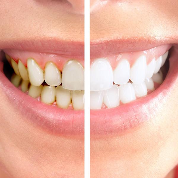 protesis-dental-protesis-fija-carillas-italprodent