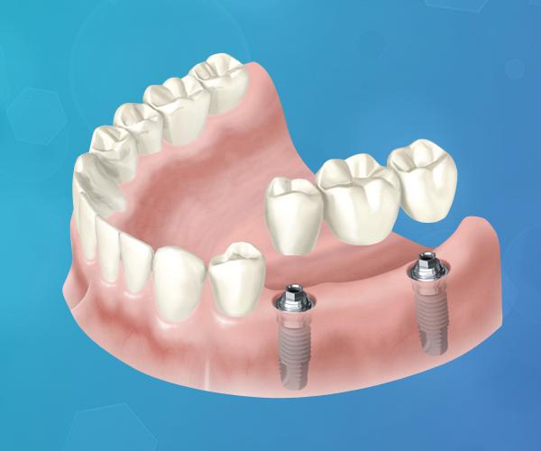 protesis-dental-sobre-implante-de-carga-inmediata-italprodent