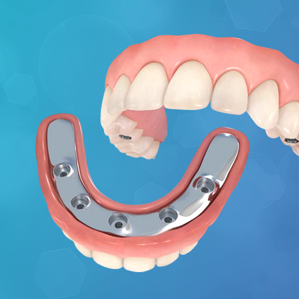 protesis-dental-sobre-implante-hibrida-italprodent