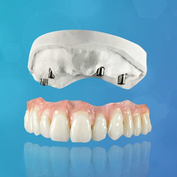 protesis-dental-sobre-implante-sobredentadura-italprodent