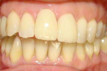 CORONAS-CEMENTADAS-E-MAX-11-Y-12_resultado-italprodent-laboratorio-dental