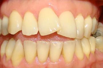 CORRECION-DE-MALPOSICION-DEL-11-Y-12-CON-CORONAS-E-MAX-antes-italprodent-laboratorio-dental