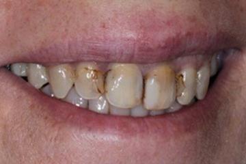 protesis-dental-italprodent-trabajo-caso4-antes