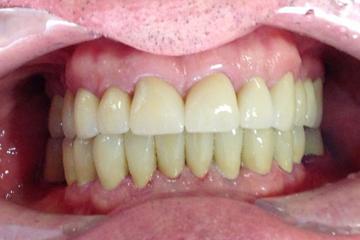 trabajos-italprodent-dentadura-6