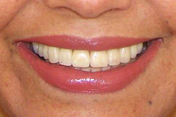 trabajos-italprodent-dentadura-7