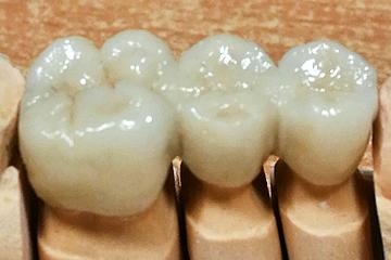 trabajos-italprodent-dientes