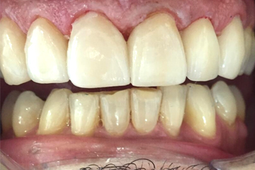 protesis-dental-fija-Carilla-de-canino-eMax-despues-laboratorio-dental-italprodent