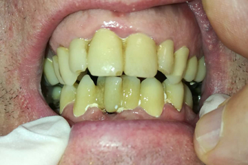 protesis-dental-fija-zirconio-antes-laboratorio-dental-italprodent