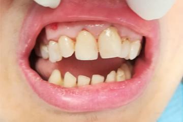 protesis-dental-fija-zirconio-antes-trabajos-laboratorio-dental-italprodent