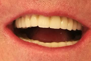 protesis-dental-fija-zirconio-despues-laboratorio-dental-italprodent