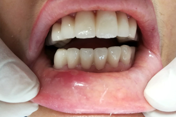 protesis-dental-fija-zirconio-despues-trabajos-laboratorio-dental-italprodent