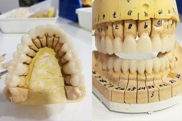protesis-dental-fija-zirconio-trabajo-laboratorio-dental-italprodent
